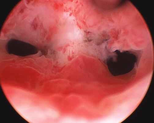 Hysteroscopic  polypectomy